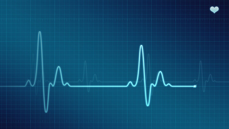 picture of an electrocardiogram signal